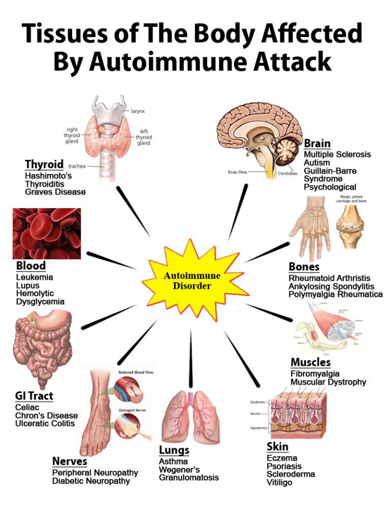 is psoriasis an autoimmune disorder